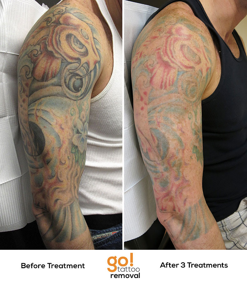 Laser Tattoo Removal Progress Photos | Allentown, PA