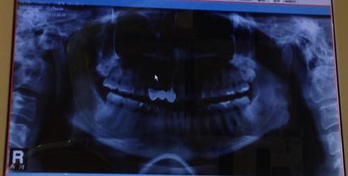 高雄前金區牙醫推薦_高雄西河牙醫診所_居家牙齒美白 (4)