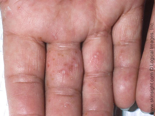 Dr. Joel Schlessinger discusses itchy, small blisters on fingers with ScarySymptoms.com