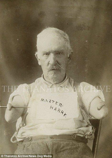 19 世紀流行的人類畸形秀 FREAKSHOW17