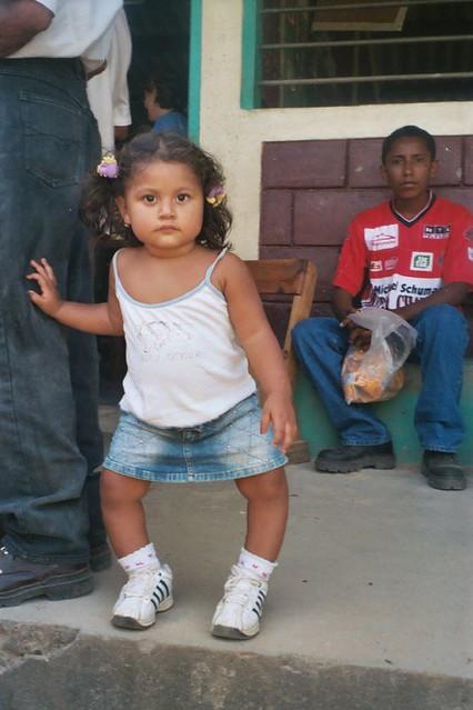 фото детей рахитиков