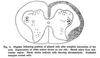 Fig. 3 from W.B. Warrington, 'Further Observations on the Structural Alterations Observed in Nerve Cells', Journal of Physiology 24 (6) (1899), pp. 464-478.