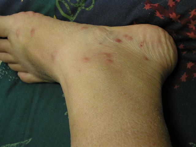Allergic Reaction Black Fly Bites http   www flickr com photos    Black Fly Bite Reaction