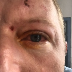 freckle(0.0), chin(0.0), face(0.0), facial hair(0.0), hairstyle(0.0), lip(0.0), eyelash extensions(0.0), human body(0.0), mouth(0.0), nose(1.0), skin(1.0), head(1.0), hair(1.0), eyelash(1.0), cheek(1.0), close-up(1.0), wrinkle(1.0), eyebrow(1.0), forehead(1.0), eye(1.0), organ(1.0),