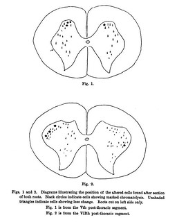Figs. 1-2 from W.B. Warrington, 'Further Observations on the Structural Alterations Observed in Nerve Cells', Journal of Physiology 24 (6) (1899), pp. 464-478.