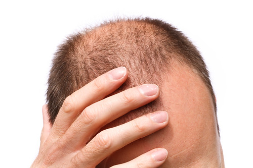 Hair Restoration Philadelphia - Pistone Hair Restoration (888) 260-3270