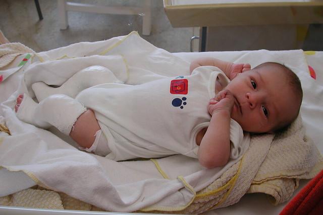 使用石膏固定的杵狀足寶寶