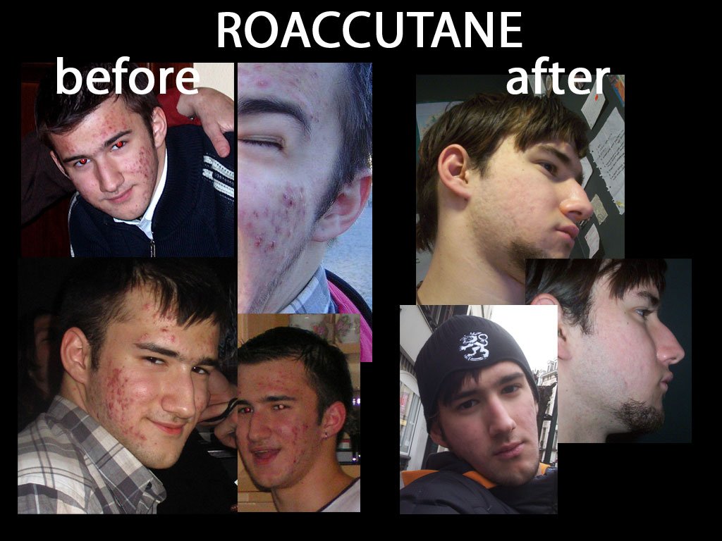 Buying accutane with no prescription