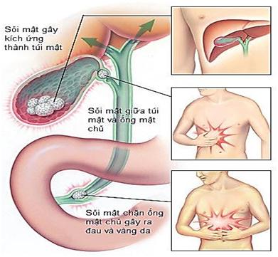 Sỏi mật bị kẹt trong ống dẫn mật gây nên cơn đau quặn hạ sườn phải