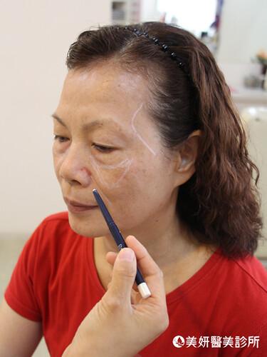 不當剩女!「輕年級」的7大顯老基因~高雄美妍醫美診所-臉部 凹陷
