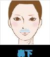 アリシアクリニック 鼻下