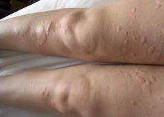 hives on legs