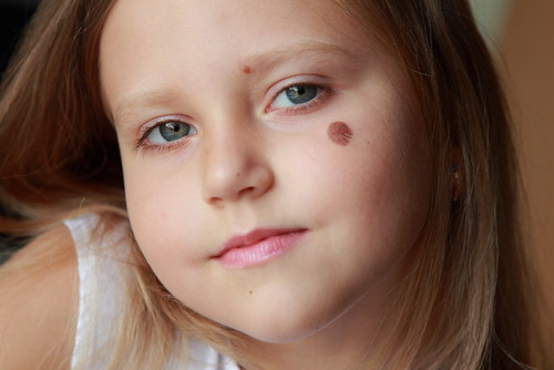 Dr. Joel Schlessinger discusses what causes birthmarks