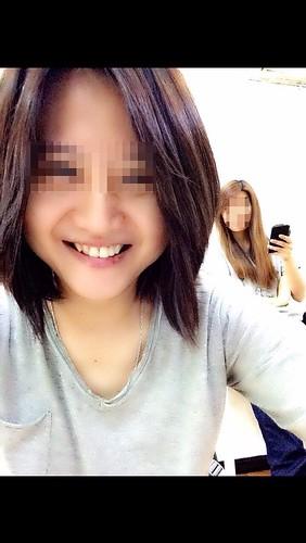 高雄前金區牙醫推薦_高雄西河牙醫診所_居家牙齒美白 (8)