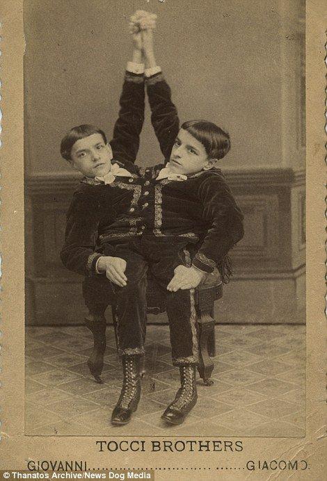 19 世紀流行的人類畸形秀 FREAKSHOW15