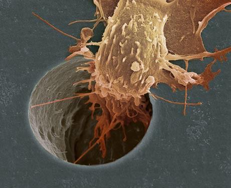 síntomas cáncer de colon