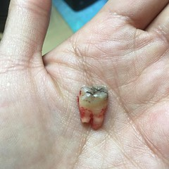 One gnarly rotten wisdom tooth removed. Cute ain't it?