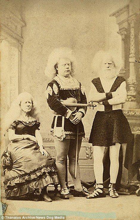 19 世紀流行的人類畸形秀 FREAKSHOW14