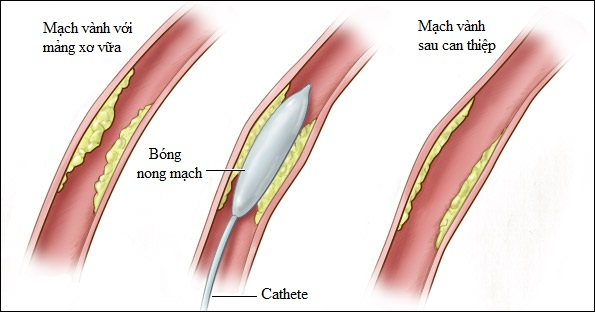 Mạch vành trước và sau khi nong mạch