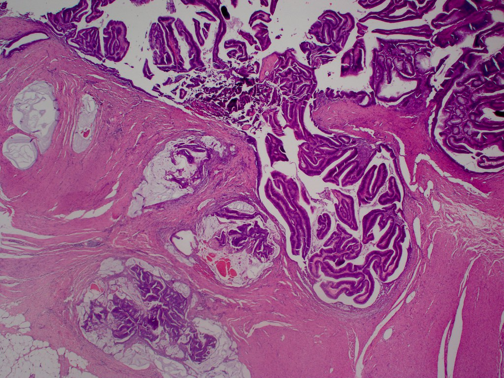 Pathology Outlines - Villous adenocarcinoma of colon