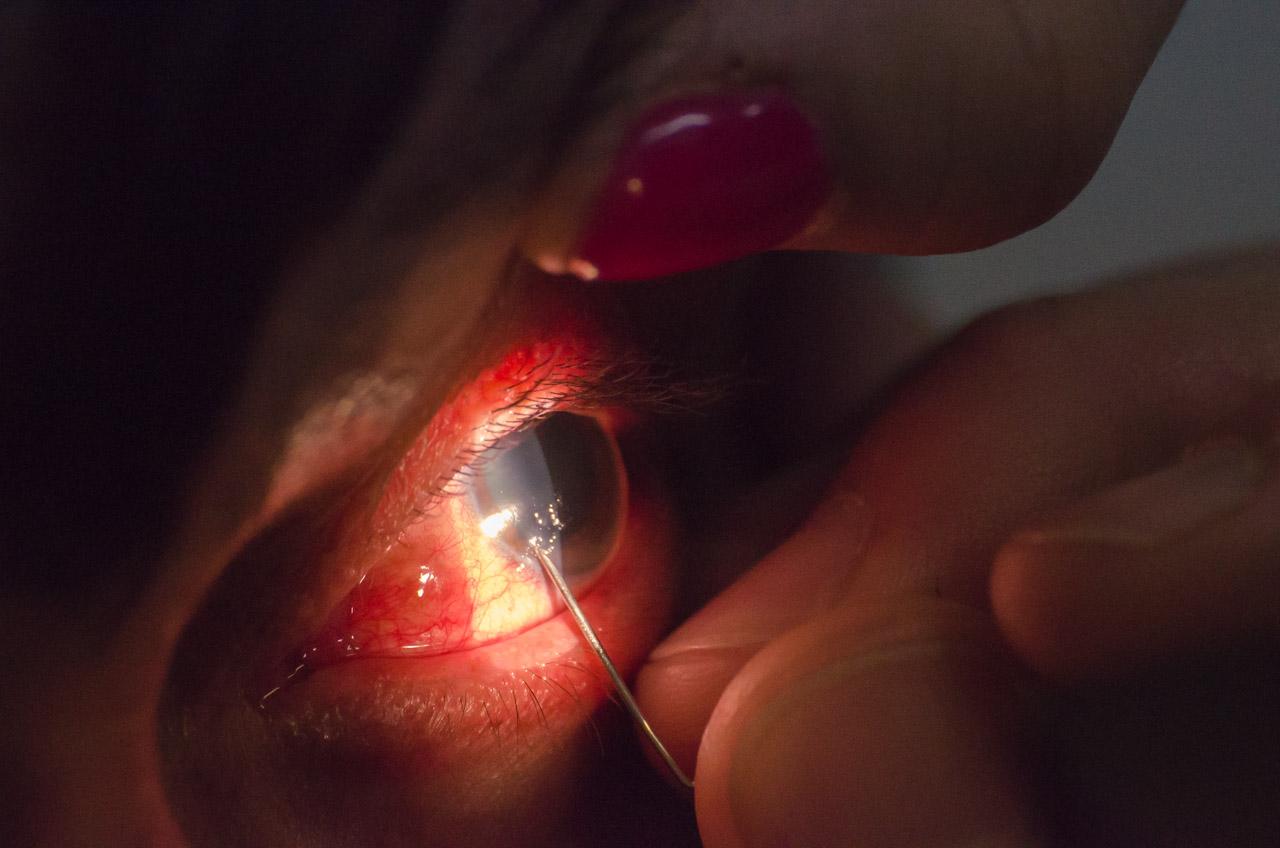 Un doctor de la Fundación Visión realiza un pequeño procedimiento de cirugía con aguja a los ojos de un paciente que le fue derivado. (Elton Núñez)
