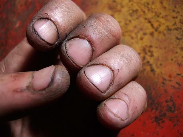 Dirty Fingernails Flickr Photo Sharing