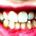 Small photo of Amie Teeth