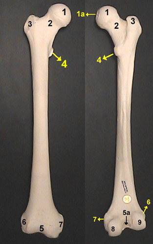 Intraarticular fractures of the distal end of the radius in young adults