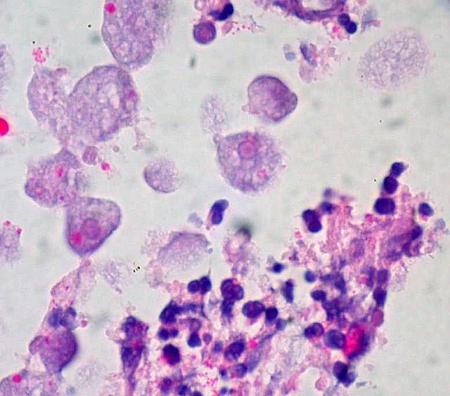 Amebic colitis (H&E)