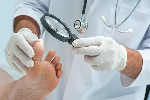 Athlete's Foot (Mushroom Infection) : Causes, Symptoms And Possible Treatments