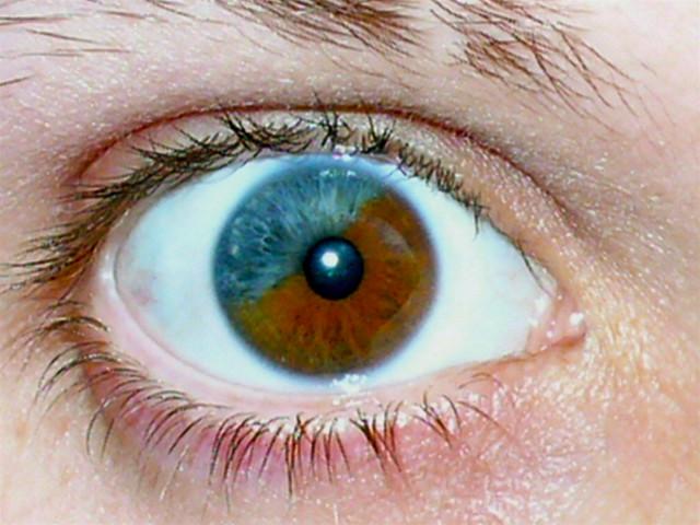 heterochromia a gallery on flickr