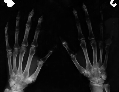Erosive Osteoarthritis Hands X-ray