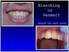 Veneers Seven Points TX