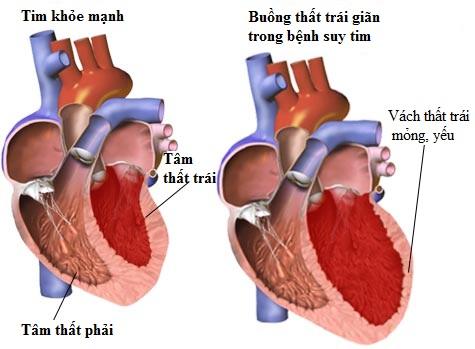 Thuốc điều trị suy tim