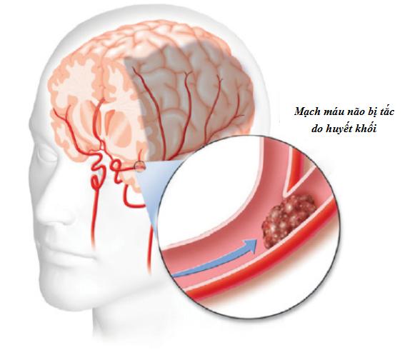 Tai biến mạch máu não do tiểu đường