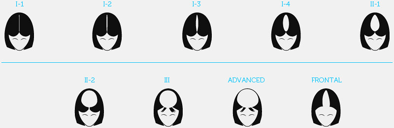 Hair fall stages - Women