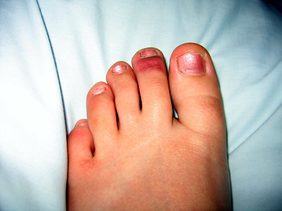 Bruised Toes From Shoes