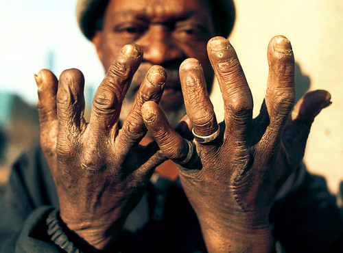 homeless hands scarred hands of homeless man in dallas