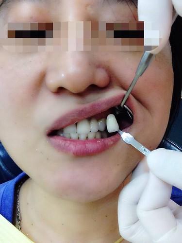 高雄前金區牙醫推薦_高雄西河牙醫診所_居家牙齒美白 (6)