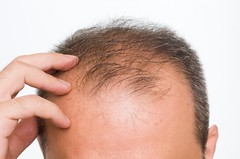 Hair Loss - Causes - Treatment - FAQ