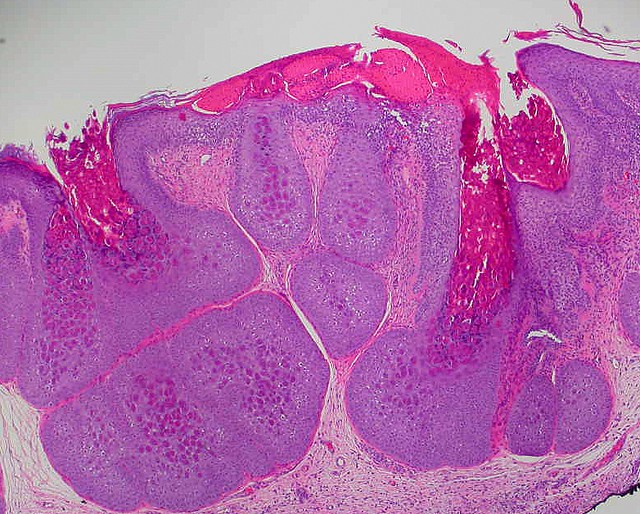 Molluscum contagiosum definition-3747
