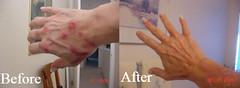 Effective Morgellons Treatment
