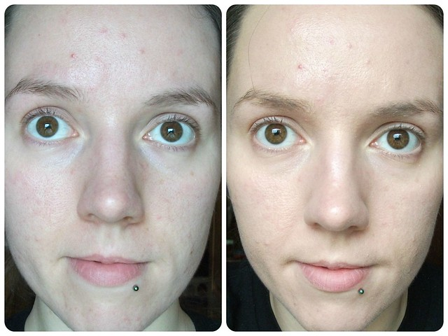 Miss Sporty Mission Correction Foundation Review Before After