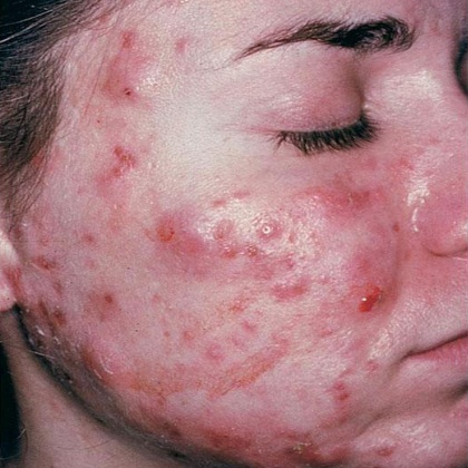 how to clear acne caused by steroids