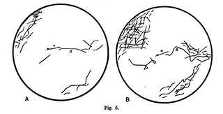 Fig. 5 from W.B. Hardy , 'Further Observations upon the Action of the Oxyphil and Hyaline Cells of Frog's Lymph upon Bacilli', Journal of Physiology 23 (5) (1898), pp. 359-375.