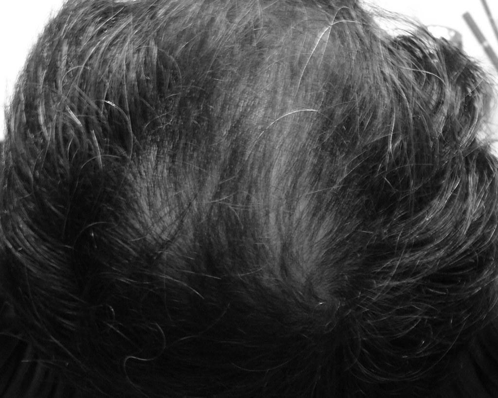 20150520_いい感じに髪生えたわ〜油断してケアしてなかったらまた薄くなって来てた
