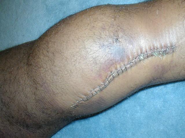 My Left Knee   ...