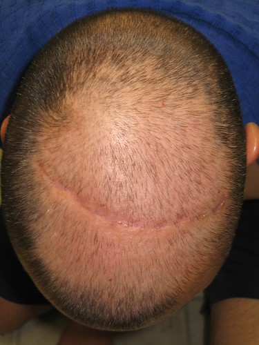 153357538 9f03582e67 Many Ways You Can Control Hair Loss