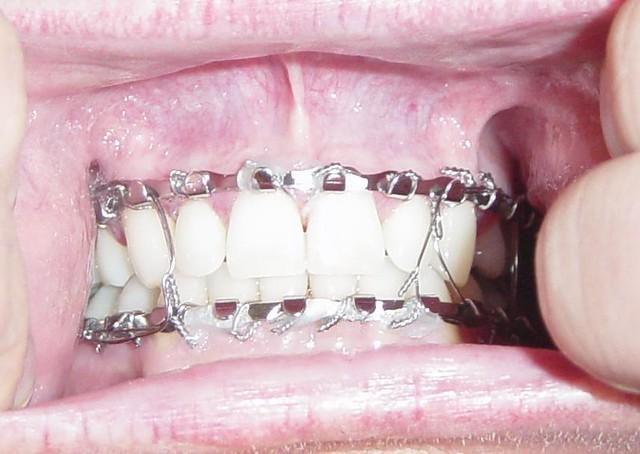 Image Gallery of Broken Jaw Wired Shut