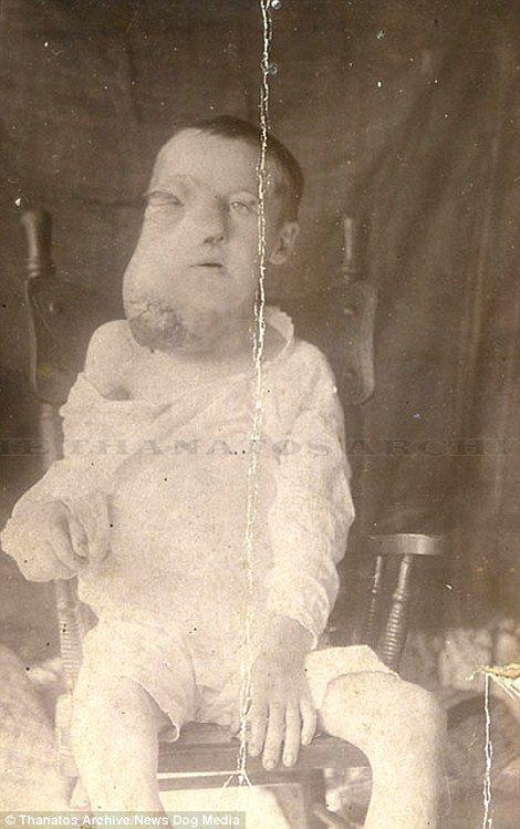 19 世紀流行的人類畸形秀 FREAKSHOW18